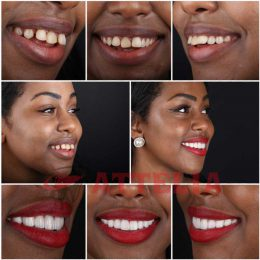 Hollywood smile design in Turkey
