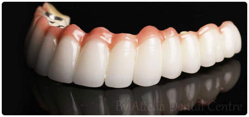 Metal supported porcelain crowns Turkey