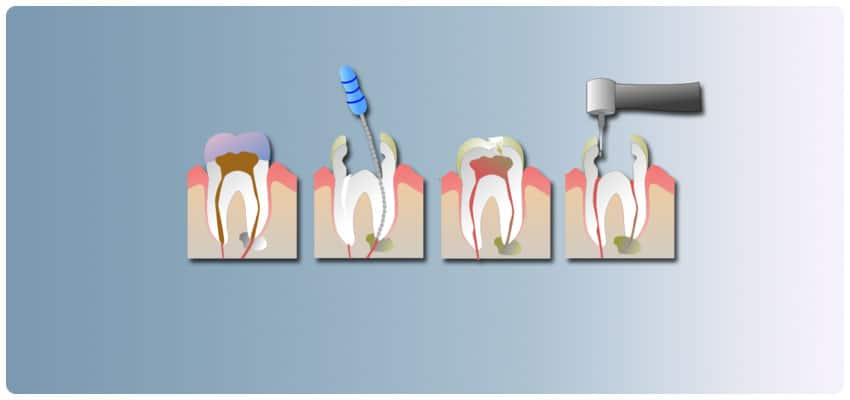 root canal treatments in Turkey